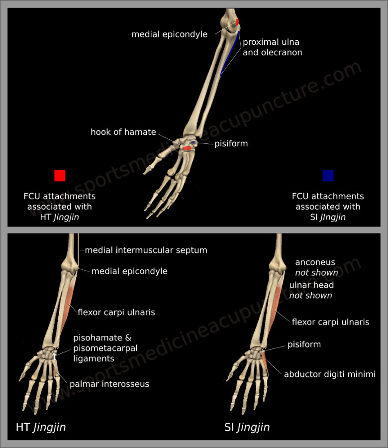 Medial Epicondylitis | SportsMedicineAcupuncture.com