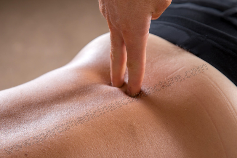 The Huatuojiaji Points and Spinal Degeneration (Spondylosis) | SPORTSMEDICINEACUPUNCTURE.COM