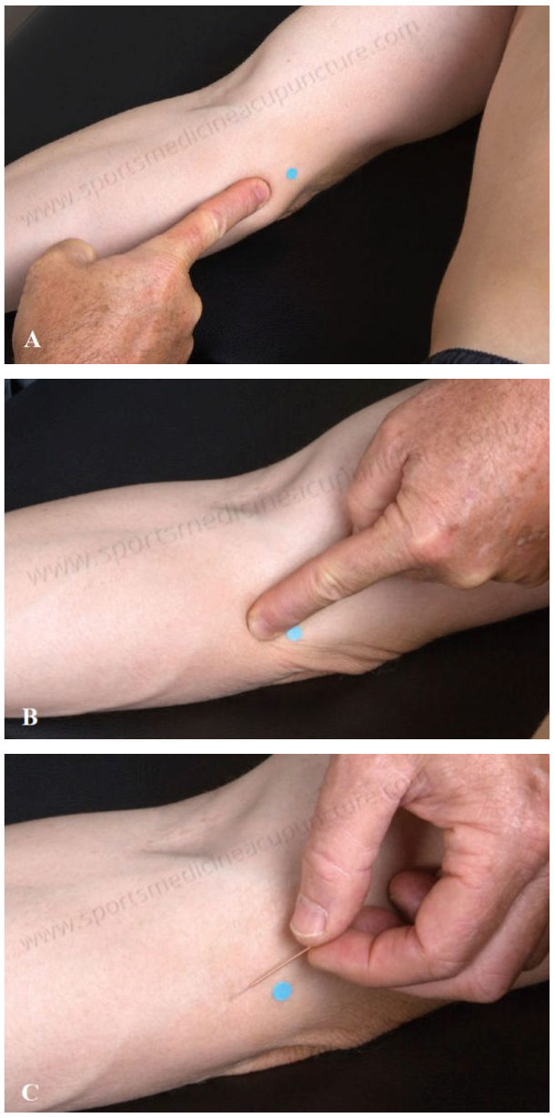 Cubital Tunnel Syndrome | SPORTSMEDICINEACUPUNCTURE.COM