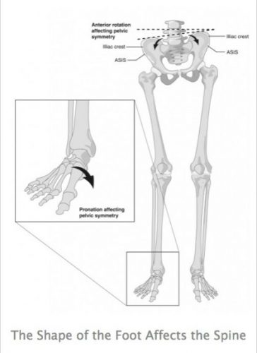 Shape of Foot Affects the Spine   SPORTSMEDICINEACUPUNCTURE.COM