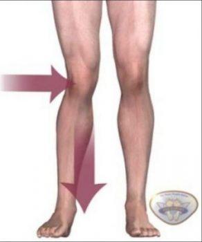 Sports Medicine Acupuncture for Chronic Pain   SPORTSMEDICINEACUPUNCTURE.COM