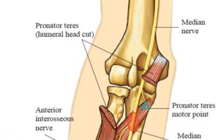 Pronator Teres Motor Point and Its Multiple Functions | SPORTSMEDICINEACUPUNCTURE.COM