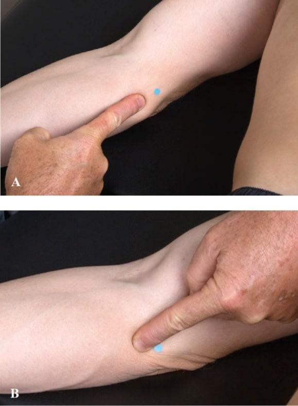Shallow Needling Technique forUlnar Nerve Entrapment at the Elbow   SPORTSMEDICINEACUPUNCTURE.COM