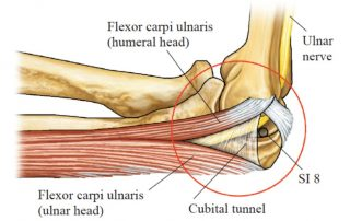 Ulnar Nerve Entrapment at the Elbow | SPORTSMEDICINEACUPUNCTURE.COM