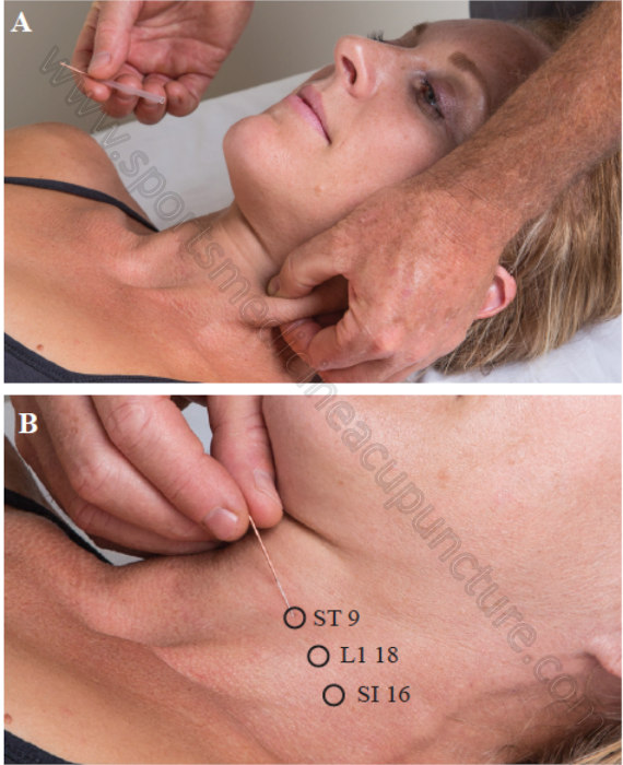 Fig 6. Motor Point Needling of the Sternocleidomastoid Muscle   SPORTSMEDICINEACUPUNCTURE.COM