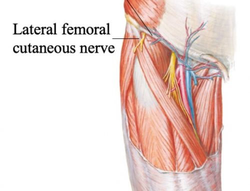 Meralgia Paresthetica: Lateral Femoral Cutaneous Nerve Entrapment