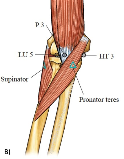 Supinator Syndrome —The Great Imitator for Lateral Epicondylitis | SPORTSMEDICINEACUPUNCTURE.COM