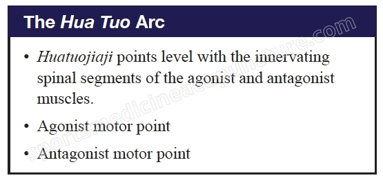 A Case Study Using the Hua Tuo Arc | SPORTSMEDICINEACUPUNCTURE.COM